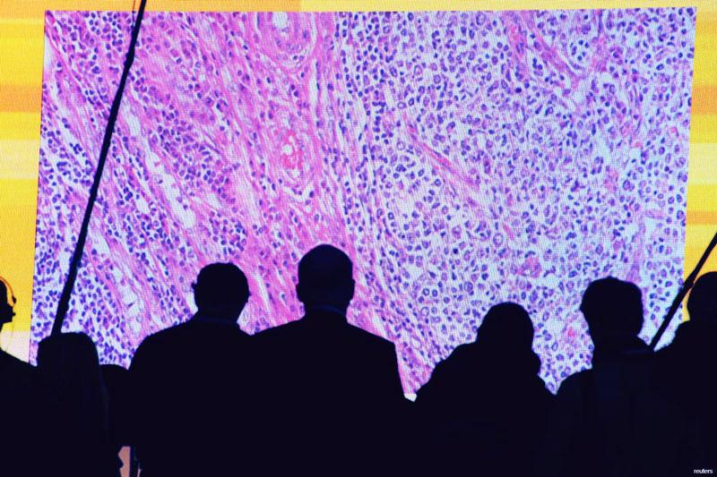 82 חולי סרטן מדי יום: הדרך לריפוי המחלה