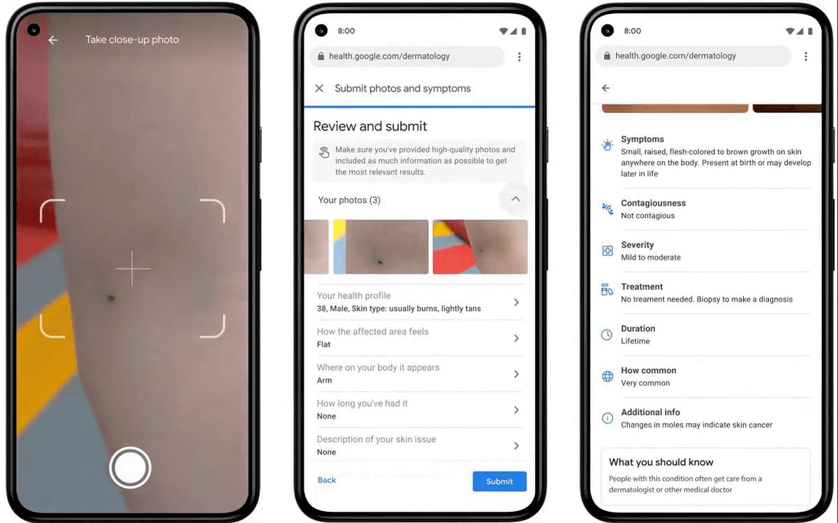Google health tool screenshots