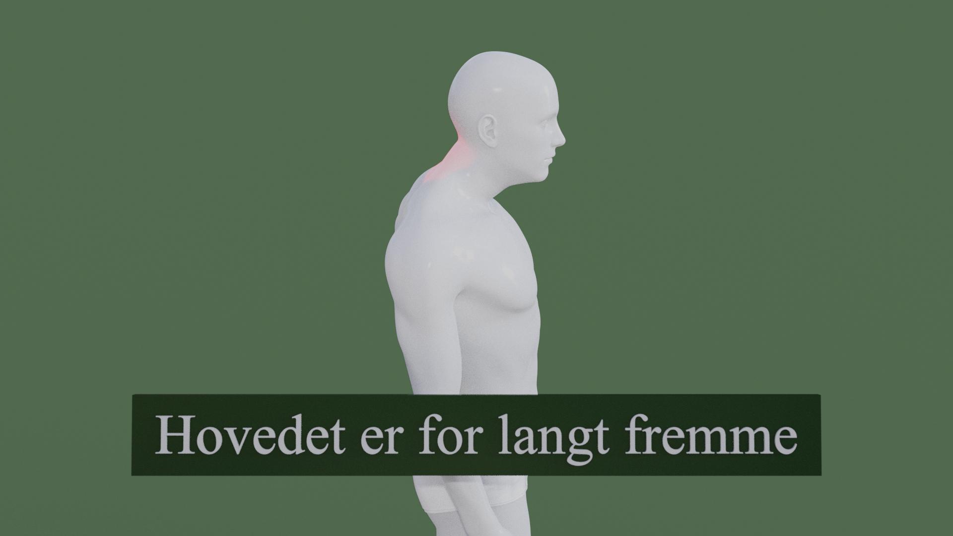 Billedet viser en 3D figur, hovedet sidder for langt fremme i forhold til kroppen. Den røde farve i nakken symboliserer smerter i nakken.