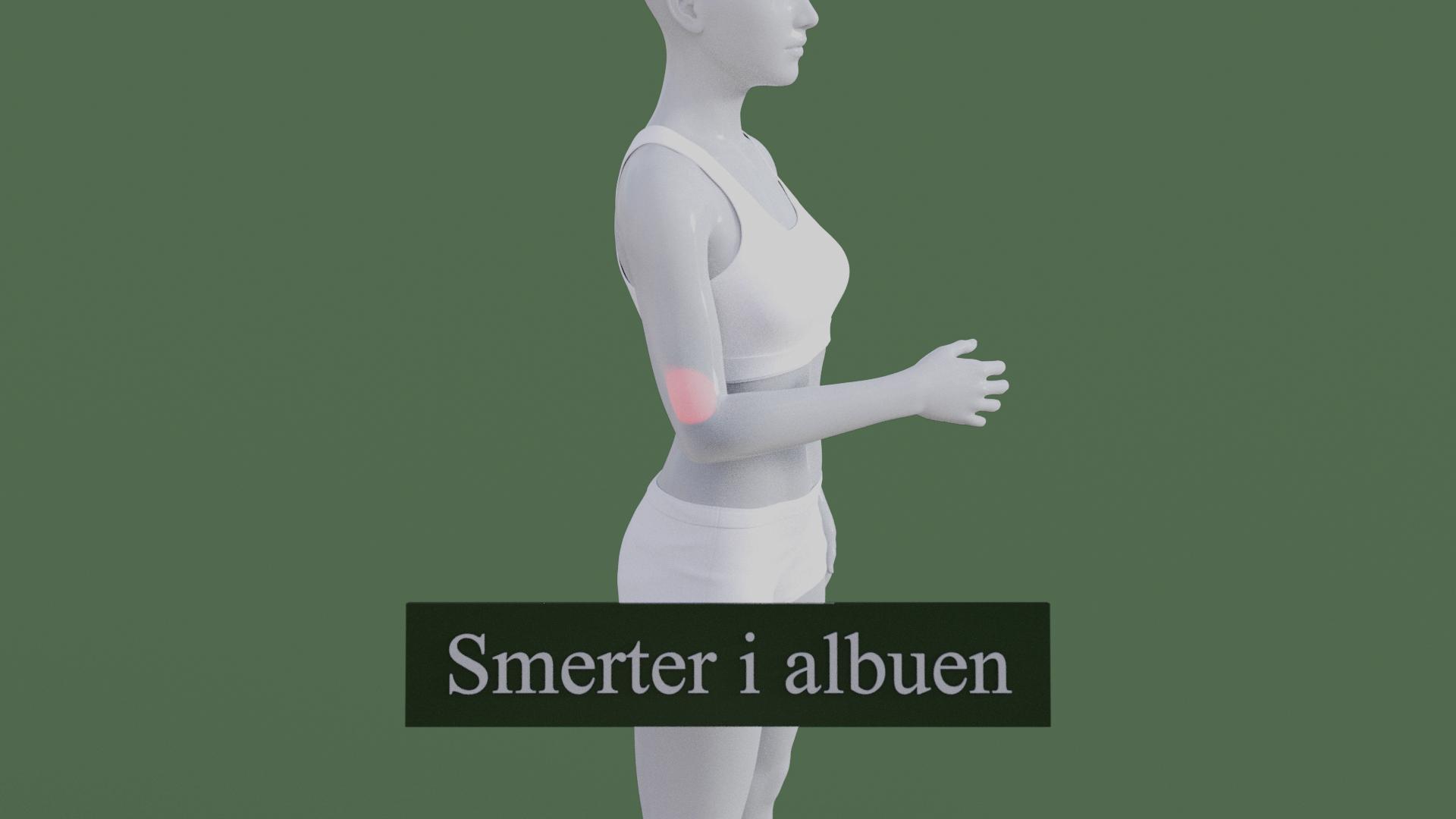 Billedet viser en 3D figur med smerter i albuen i for af en tennisalbue. Den røde farve på albuen symboliserer smerterne.
