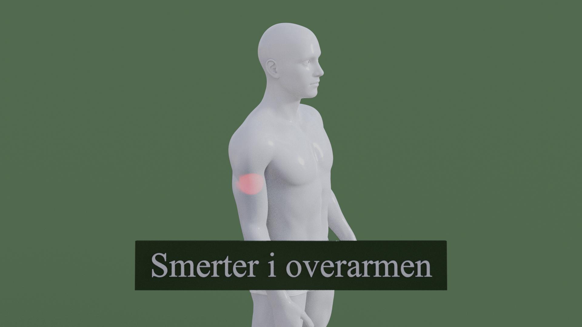 Billedet viser en 3D figur med smerter i overarmen. Den røde farve på armen symboliserer smerterne.