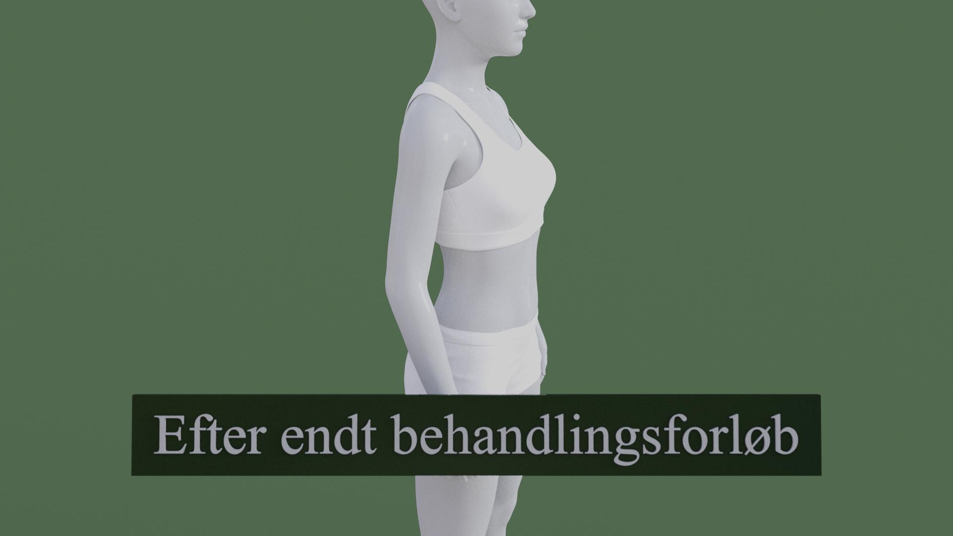 Billedet viser den samme 3D figur, men uden den røde farve på albuen. 3D figuren er helbredt.