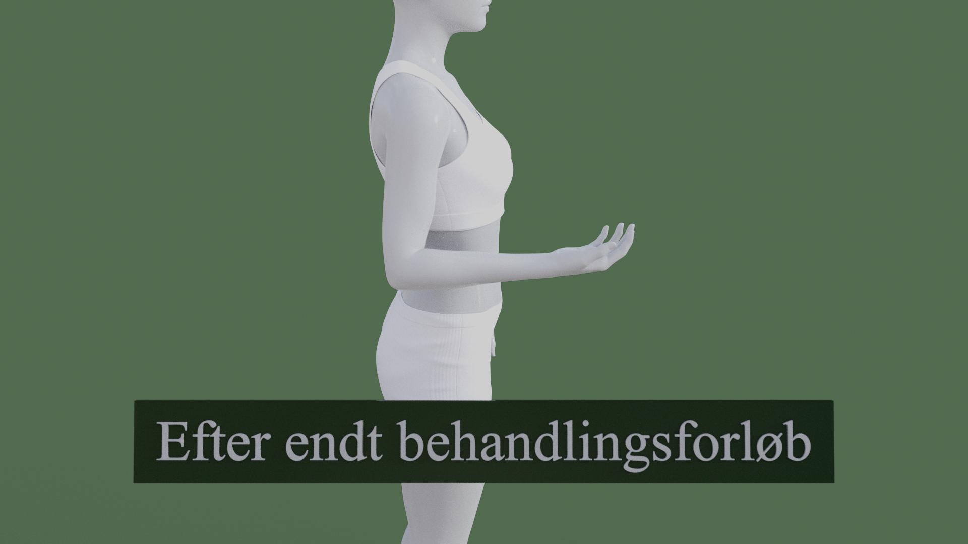 Billedet viser den samme 3D figur, men uden den røde farve på underarmen. 3D figuren er helbredt.