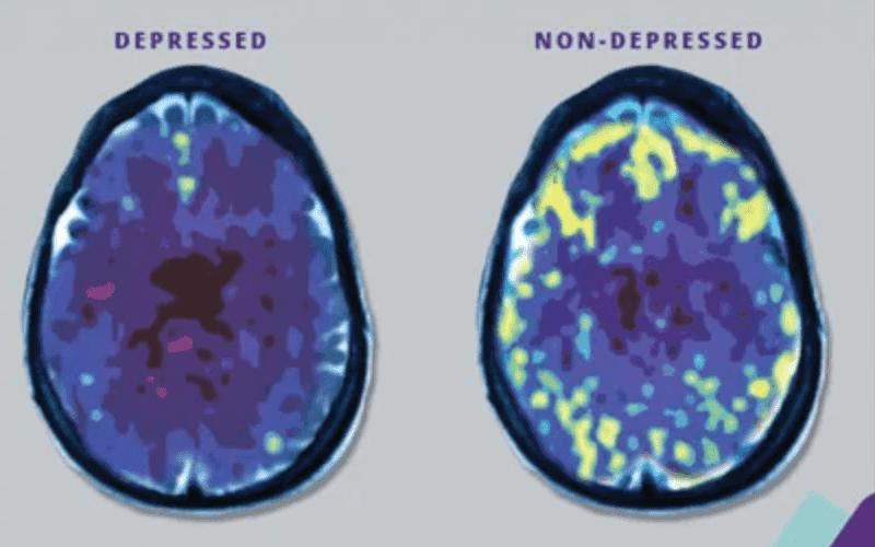 TMS Depressed Brain