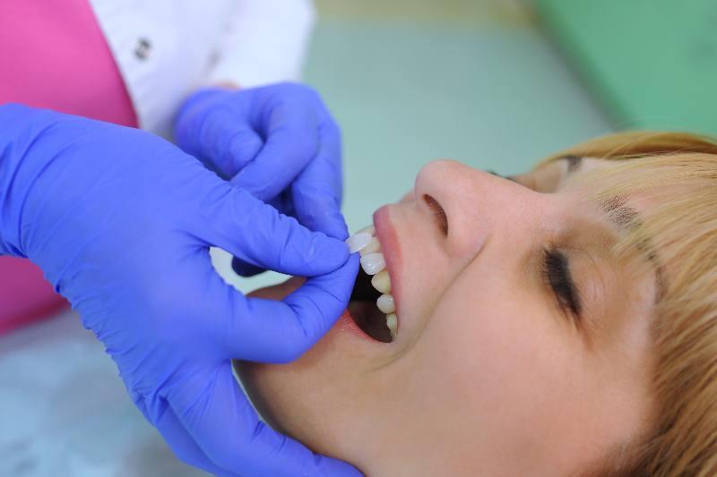 Dentist puts dental veneers patient and correction of teeth
