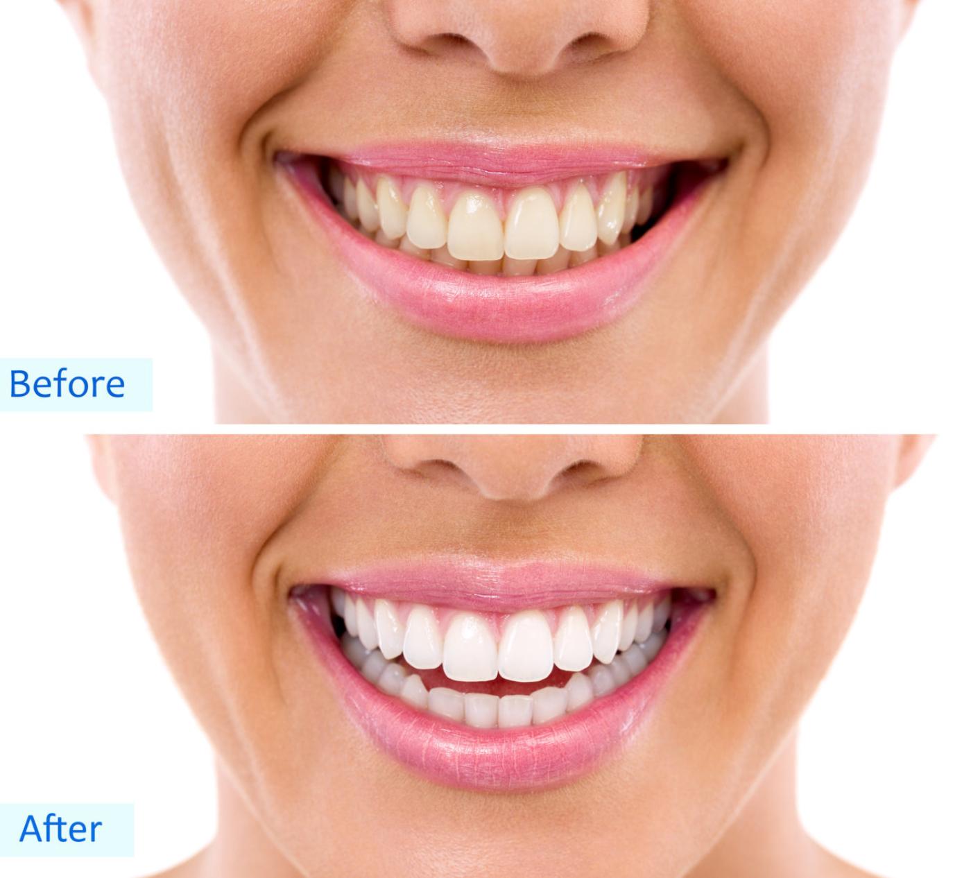 Cosmetic Whitening