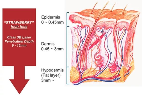 Image showing cross section of the skin and several layers.