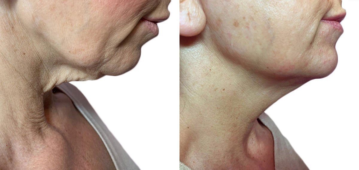 Strawberry Laser Face Lift before and after images.