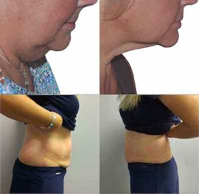 Before and after image of clients showing reduced fat from Laser Lipo treatments.