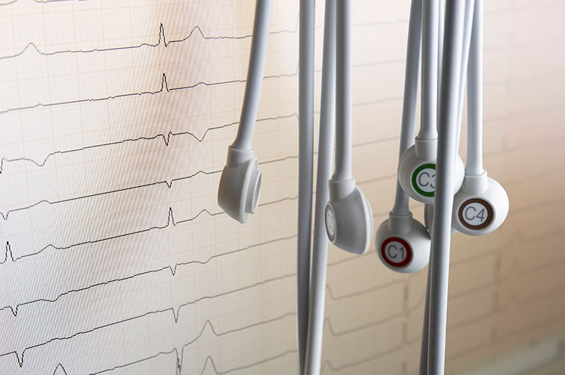Detailaufnahme des EKG Geräts