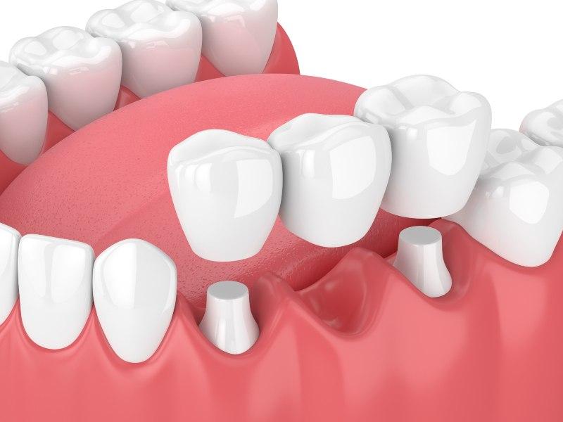 diagram of a dental bridge