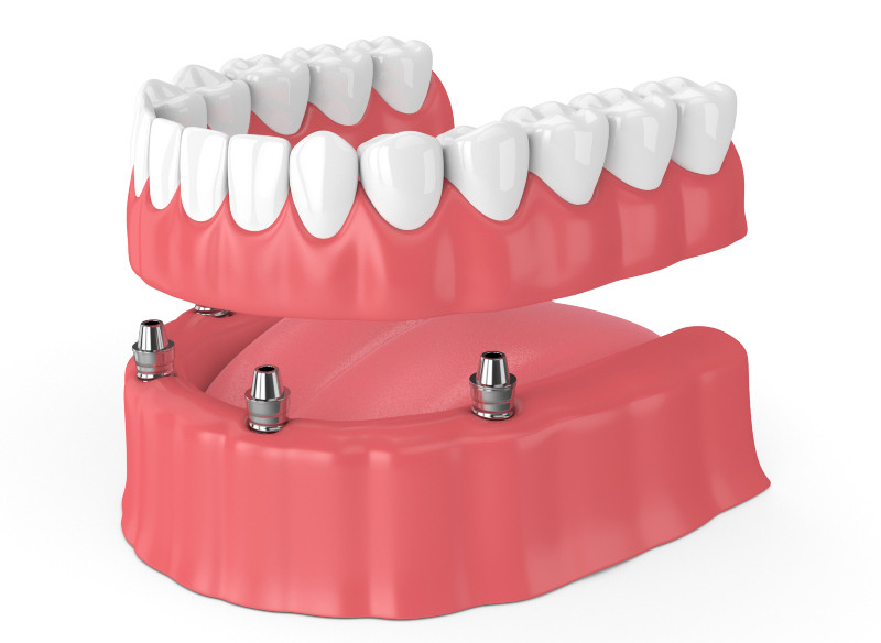 diagram of a full set of teeth implants