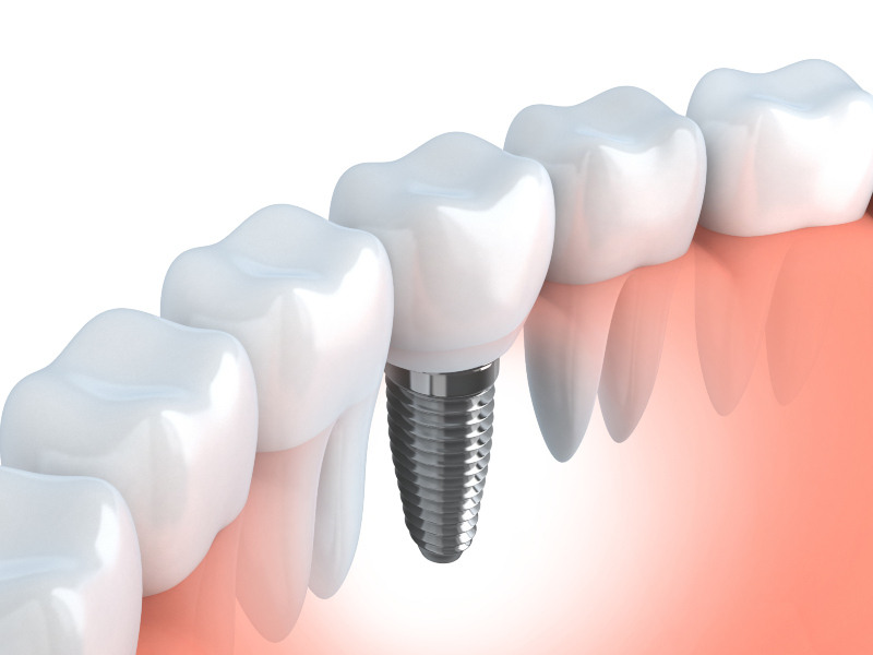 diagram of a tooth implant in a jaw