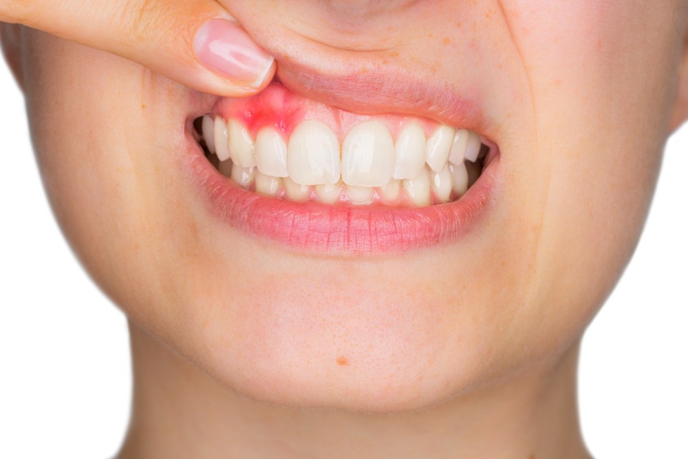 woman in pain due to gum disease
