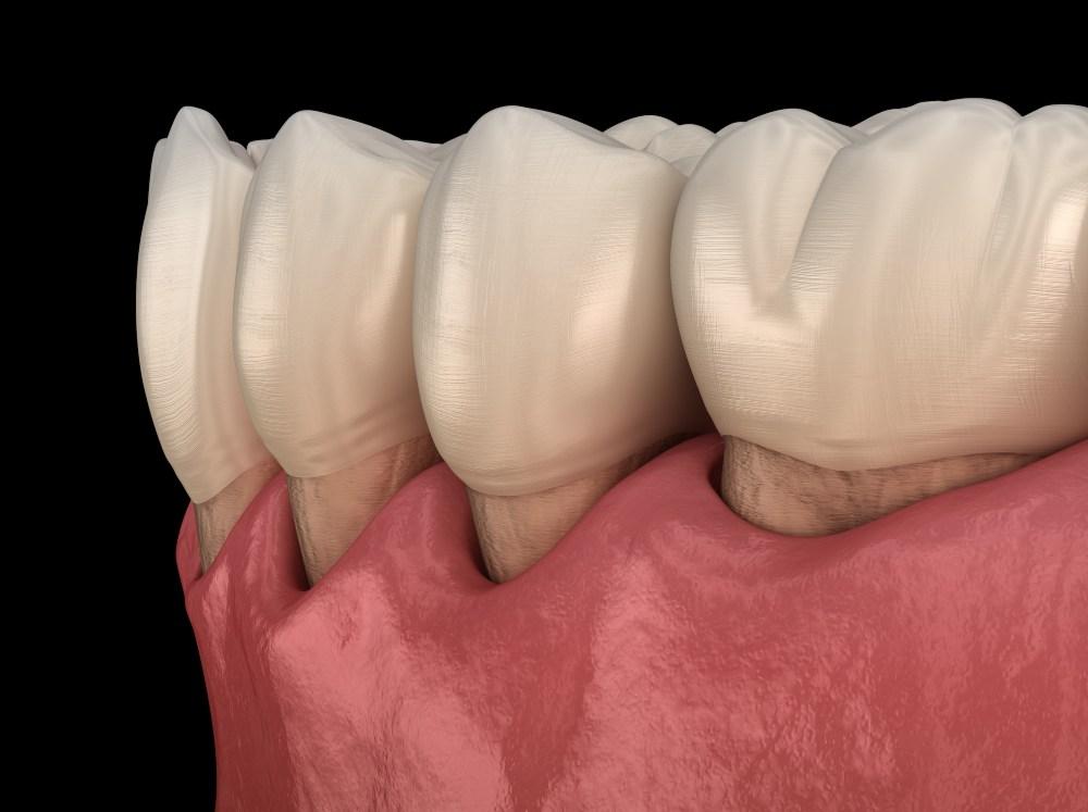 close up diagram of recessed gums