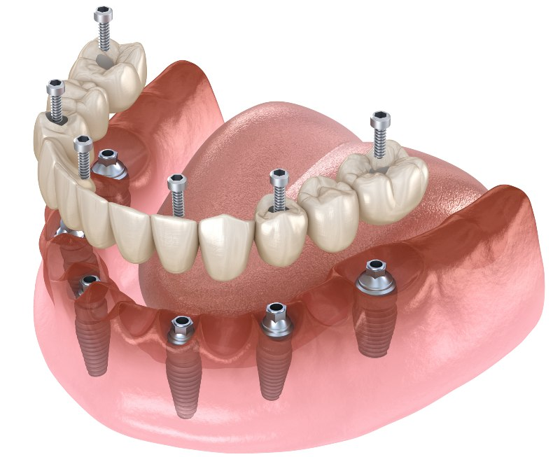 diagram of a full arch implant