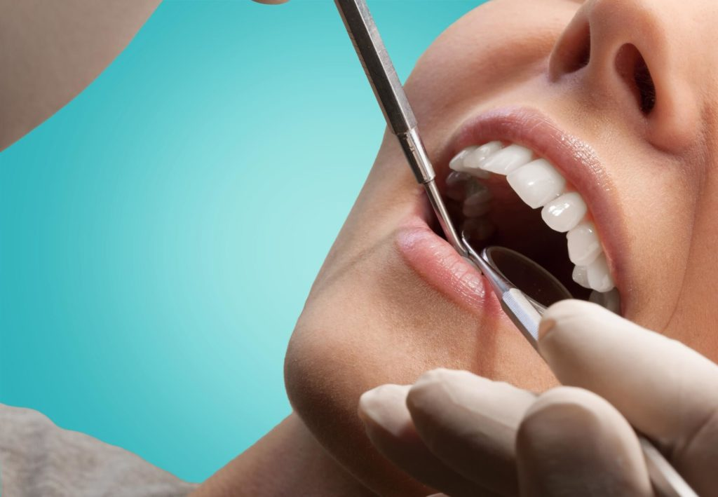 who offers the best braces coral springs?
