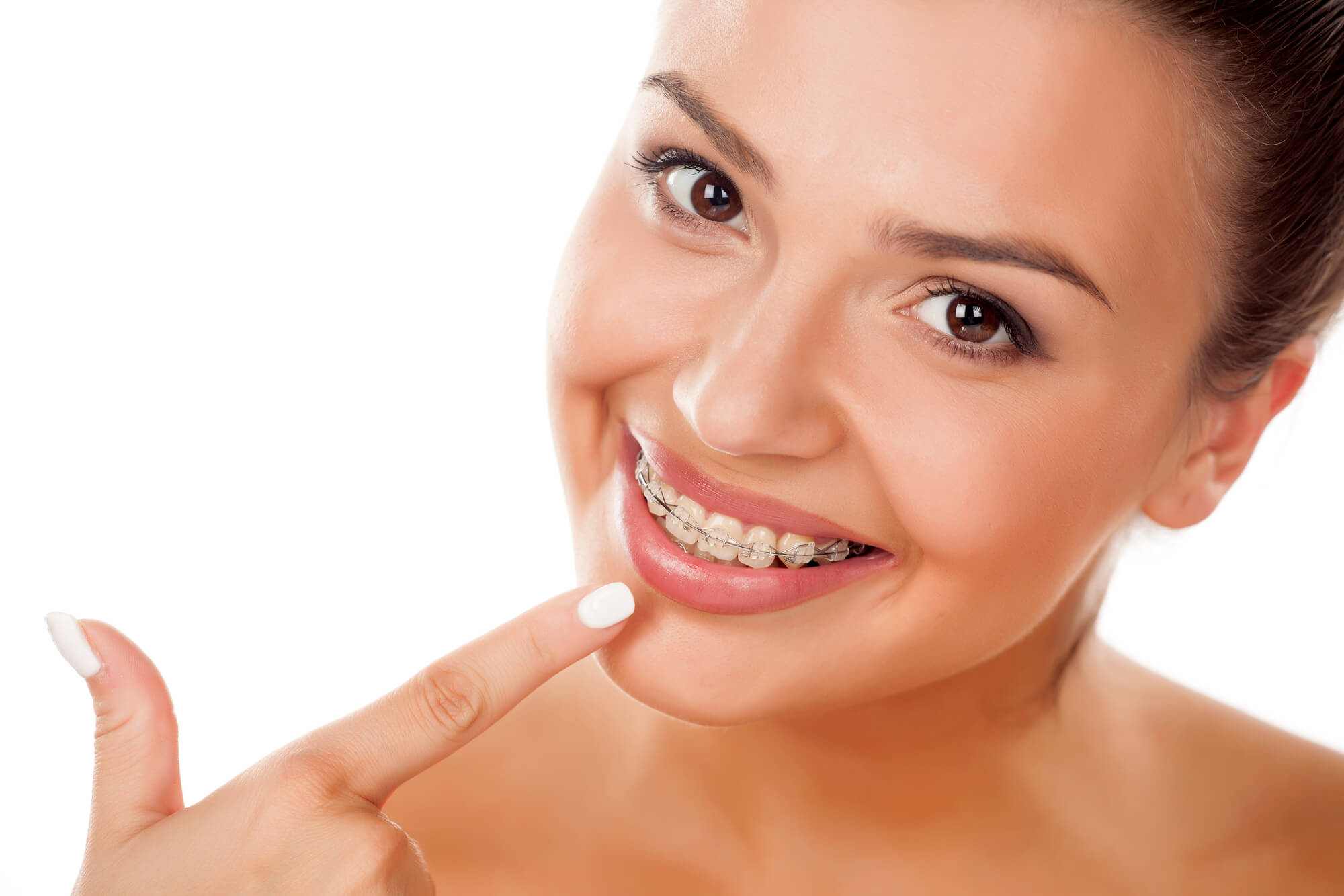 Beautiful woman pointing to Braces in Coral Springs