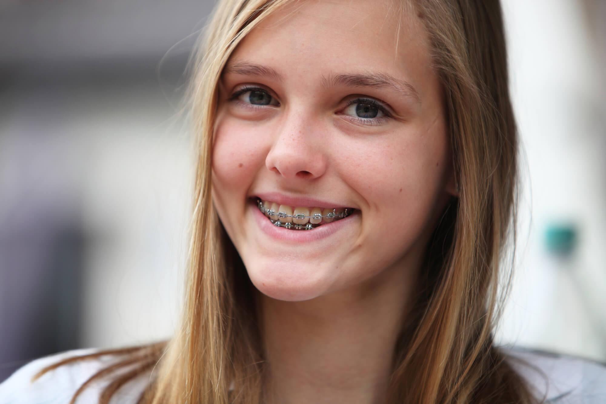 girl with braces in tamarac