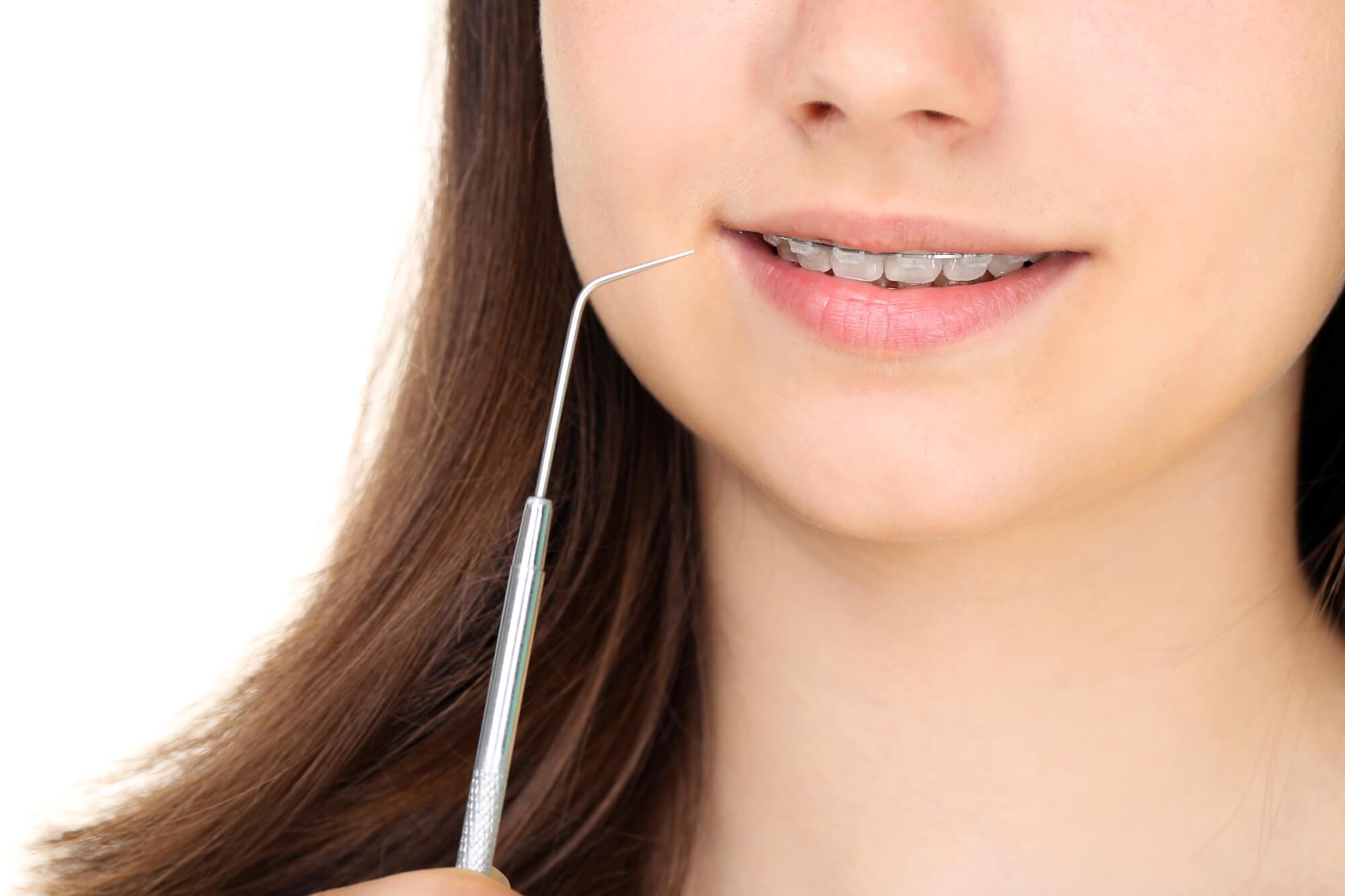 braces orthodontist tamarac