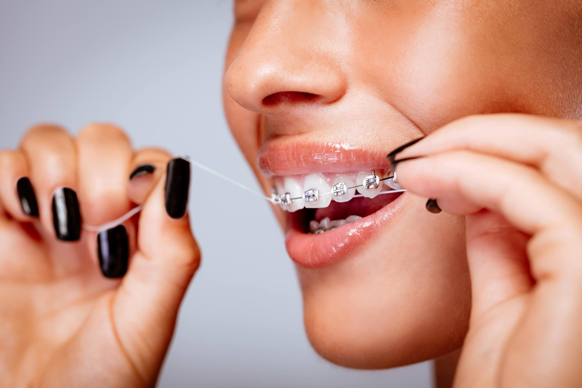 Orthodontist Hollywood