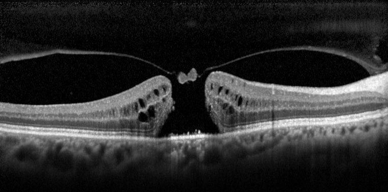 Intervento per il foro maculare - Rome Vision Clinic di Andrea Cusumano