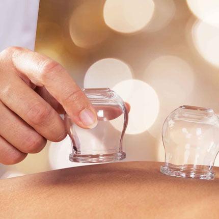 Isprobajte cupping terapije za zdravlje i ljepotu