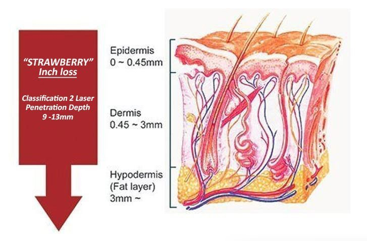 Anatomy Diagram of the Skin section