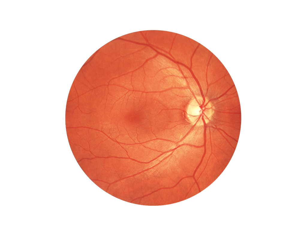 Colour fundus image