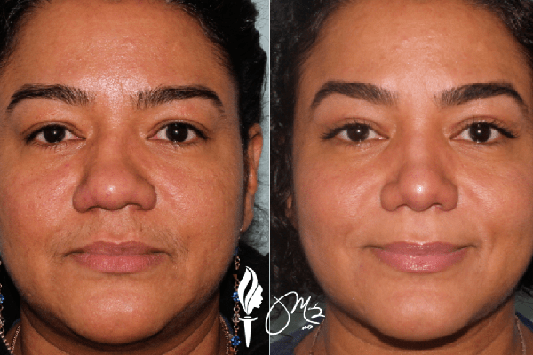 Brow & Eyelid Rejuvenation