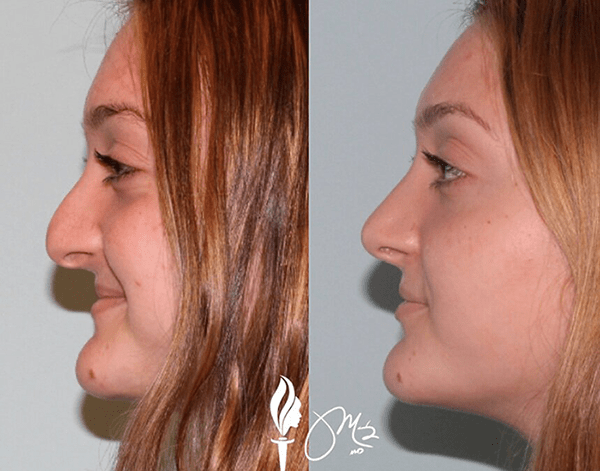 Rhinoplasty Surgical Results