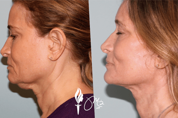 Face & Neck Rejuvenation