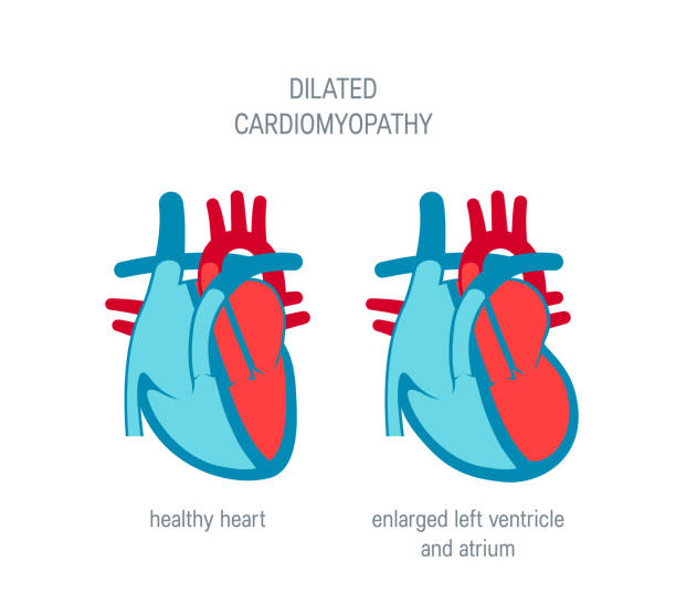 Heart disease vector