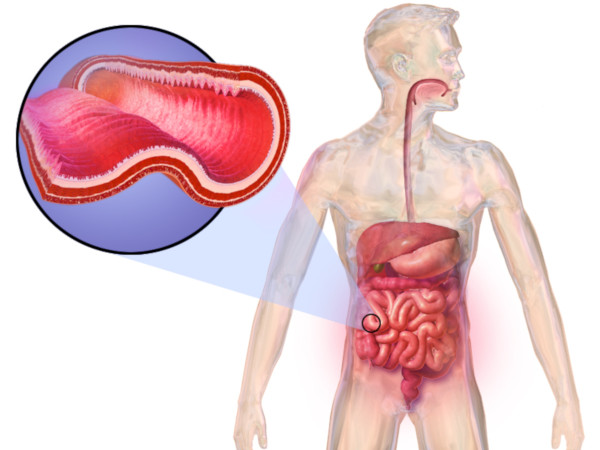 how chrons disease affects the intestines