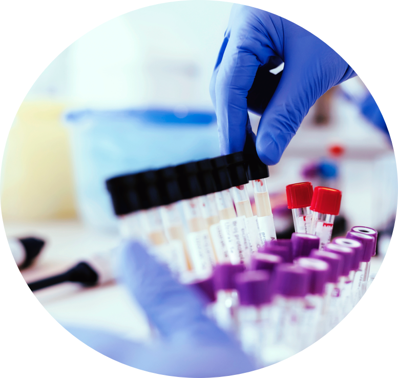 Image of hand grabbing vials