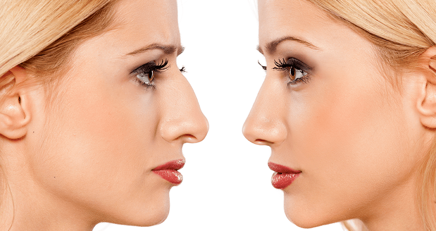 Candidate for Rhinoplasty surgery
