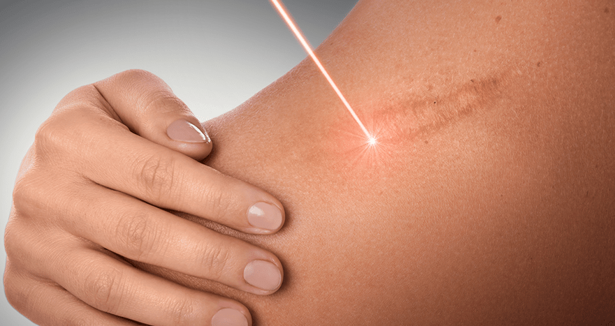 Scar revision using a laser for removal