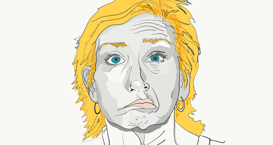 Illustrated example of Bell's Palsy