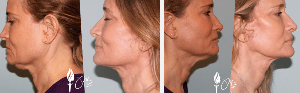 Face and Neck Rejuvenation 3