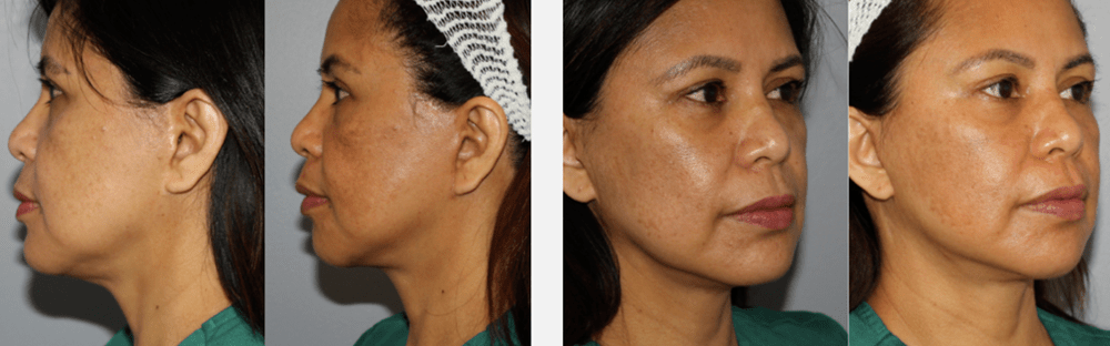 Face and Neck Rejuvenation 4