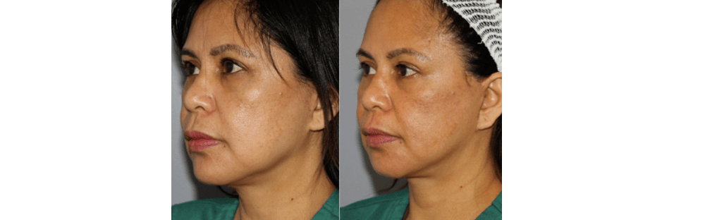 Face and Neck Rejuvenation 5