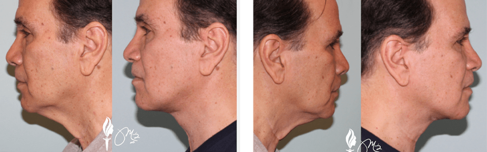 Face and Neck Rejuvenation 6