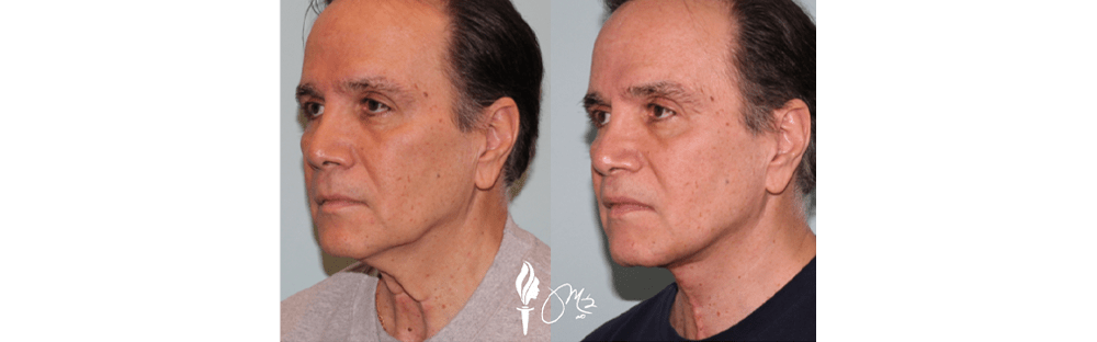 Face and Neck Rejuvenation 7