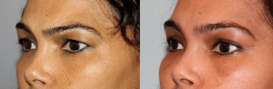 Brow & Eyelid Rejuvenation 1