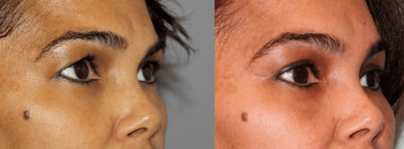 Brow & Eyelid Rejuvenation 2
