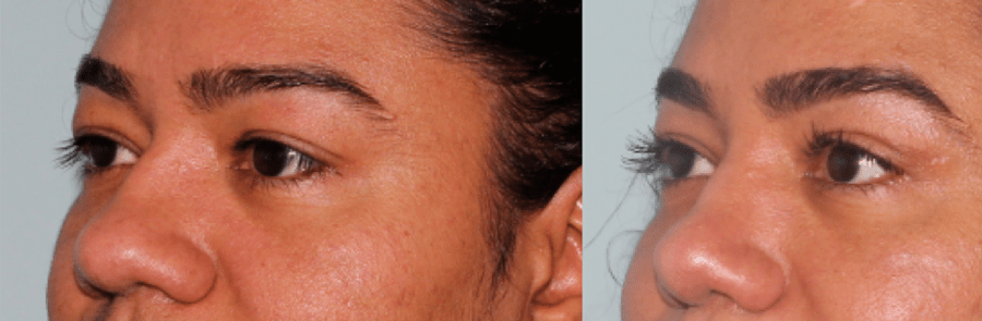Brow & Eyelid Rejuvenation 4