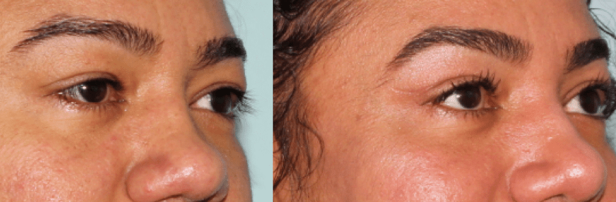Brow & Eyelid Rejuvenation 5