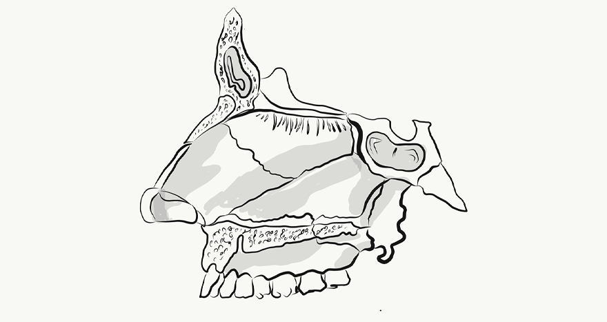 The History of Rhinoplasty Part II