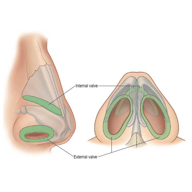 Patients choose rhinoplasty for improved appearance or nasal function