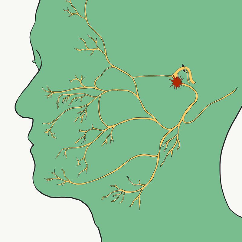 Facial Nerve Diagram